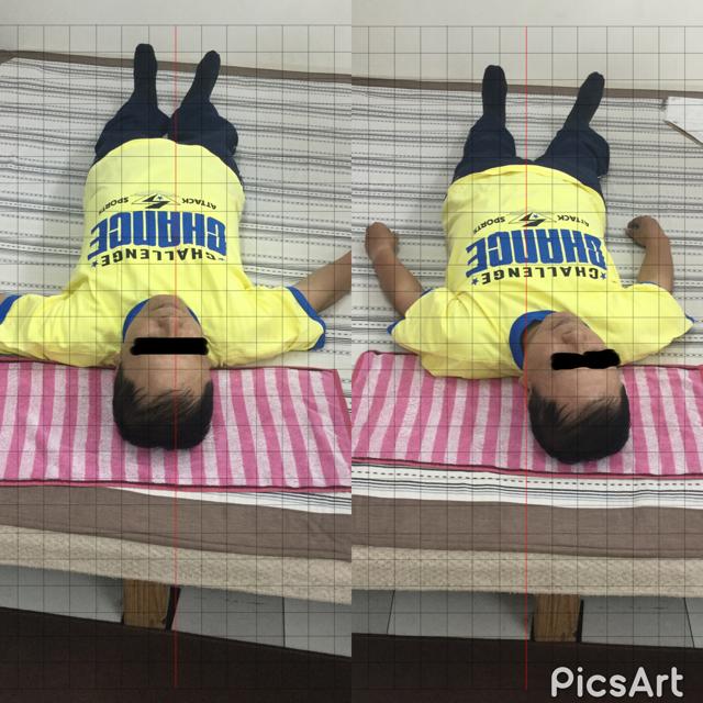 無痛整体 施術前と施術後